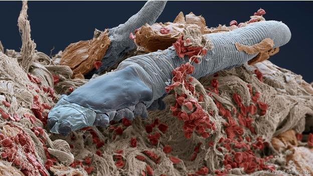 Demodex acaro